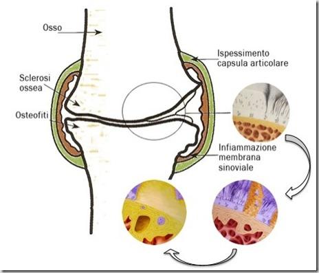 osteoarticolare